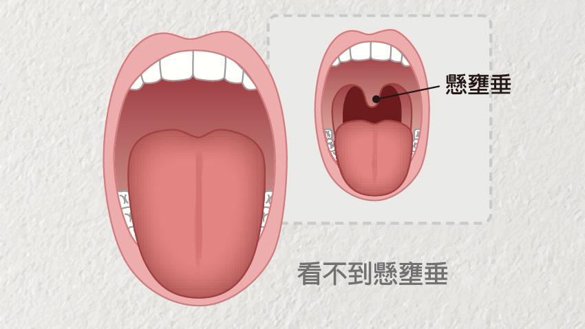 舌頭胖大會缺氧失眠 2招「自診」有沒有大舌頭