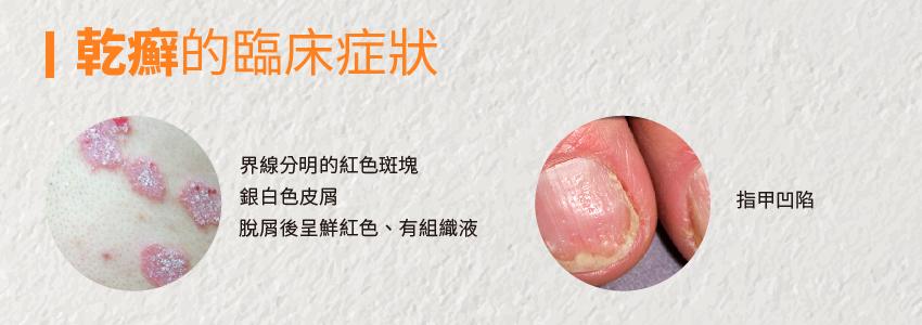 是乾癬還是脂漏性皮膚炎?你分得清楚嗎?