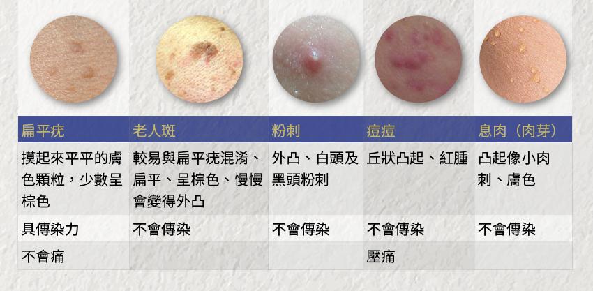 臉上冒一顆是痘痘嗎?一張圖表教你分辨5種皮膚小顆粒
