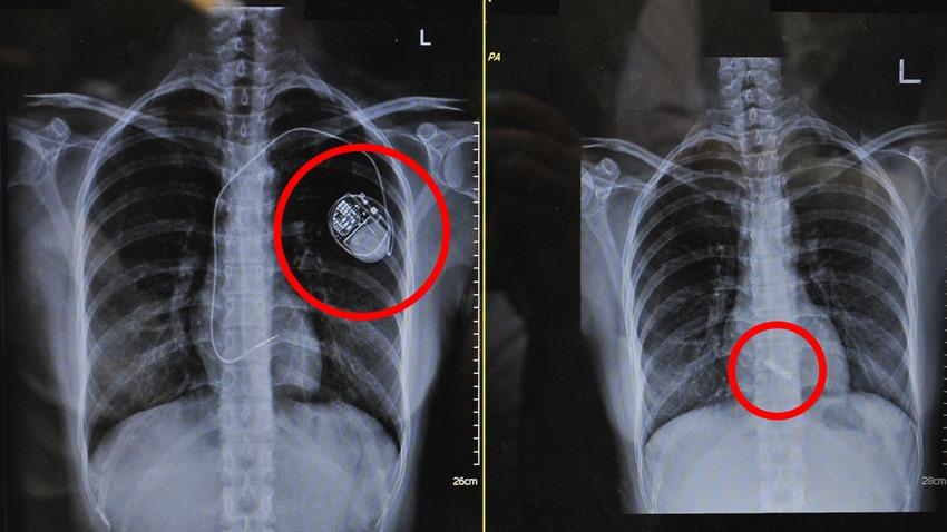 心跳慢了好幾拍 新式心律調節器讓她拋開導線糾纏