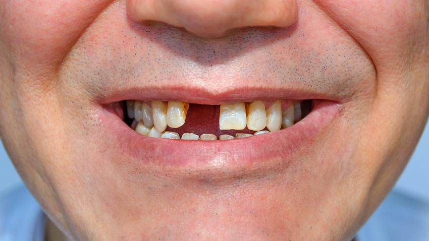 缺一顆牙沒關係?當心3種後遺症找上你