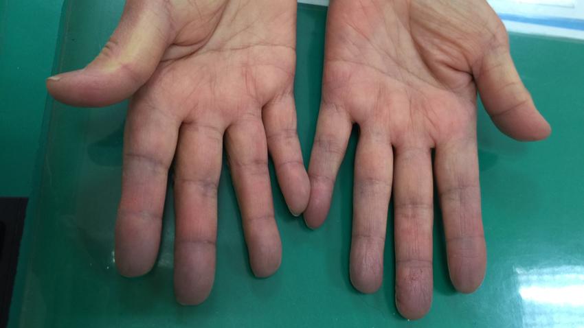 冷到手指發紫?這不是正常現象,有截肢危險!