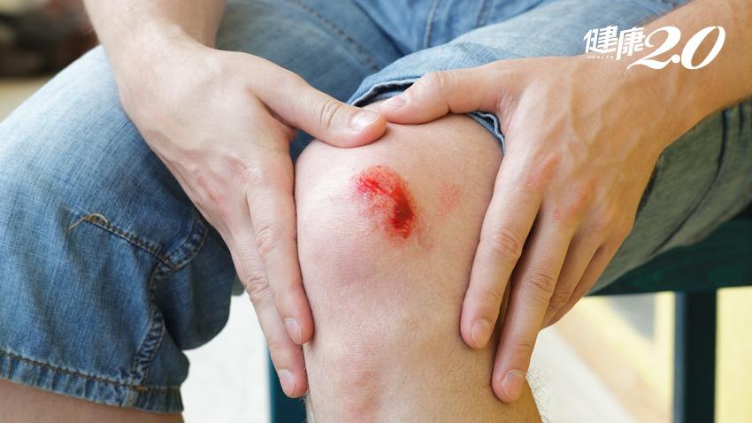 受傷不想留疤?人工皮要選「這種」才有用