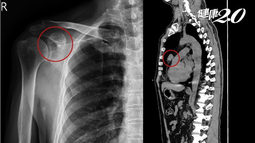 大叔肩膀疼痛以為五十肩,不料竟是胸腺癌轉移