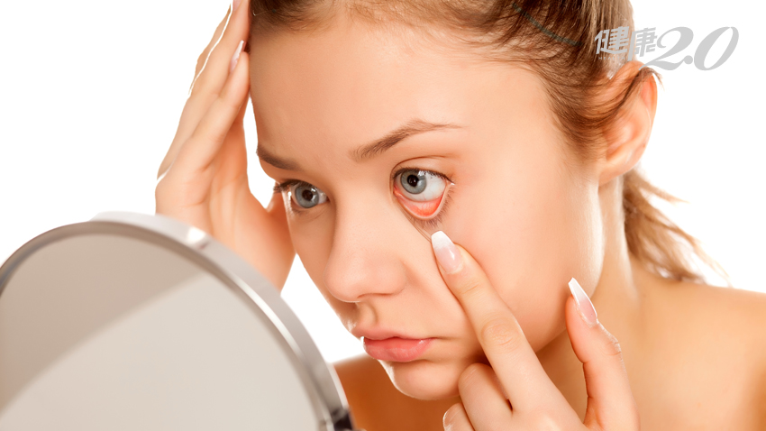 低眼壓也會青光眼!醫師:檢查眼睛「罩杯」