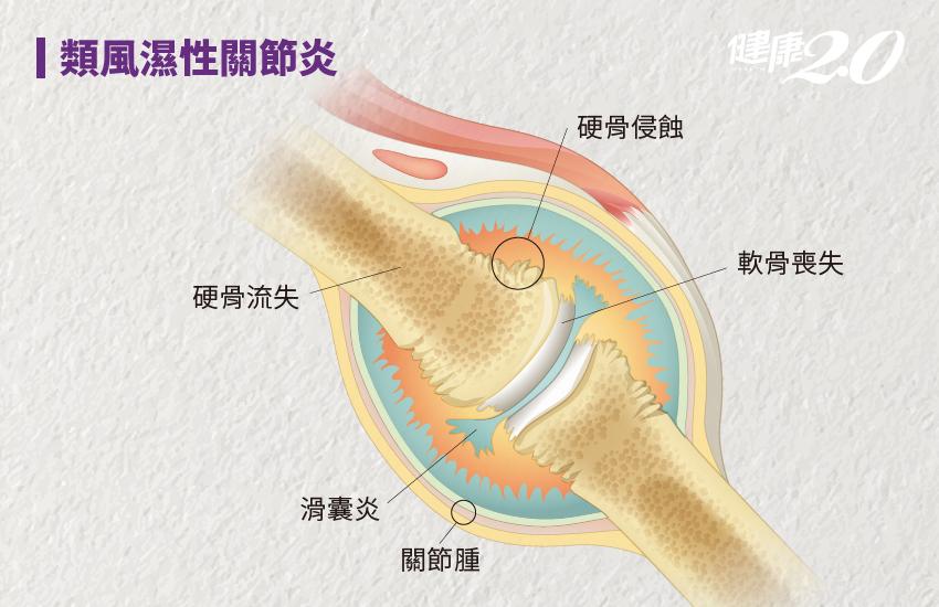手指關節痛別輕忽!「這種關節炎」好發40至50歲女性