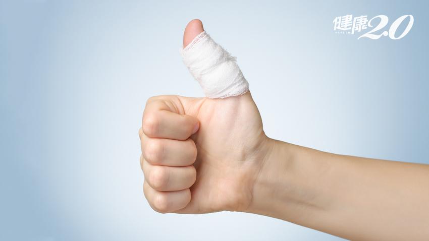 假期不想上醫院?拉傷、扭傷、挫傷急救法
