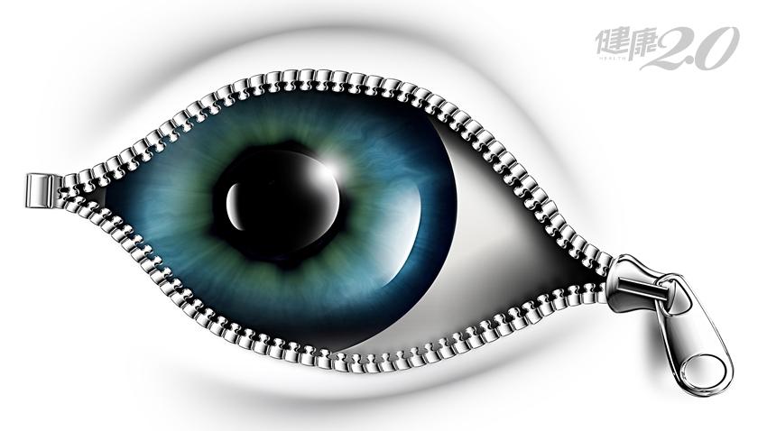 年節防眼疾!眼科醫師:這3件事千萬別做