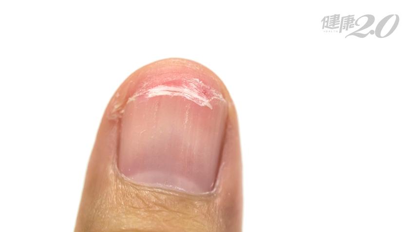 指甲脆弱易碎?你該補充這3種營養了