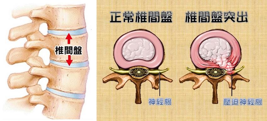 伸懶腰竟卡住?出現這些徵兆,當心椎間盤突出!