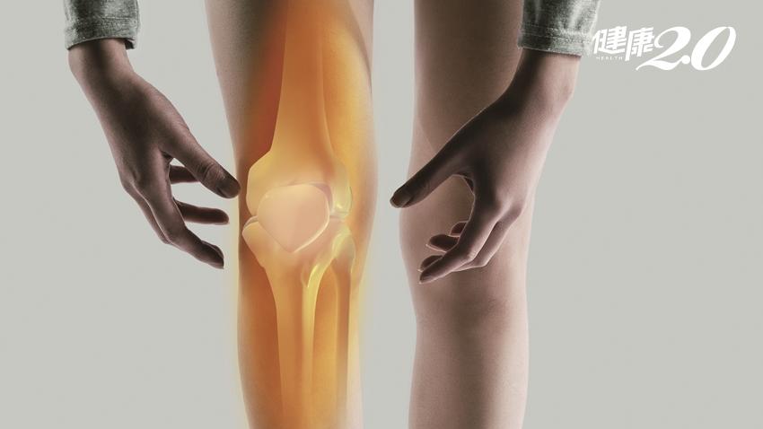 「膝」頭大患!退化性關節炎可以不開刀嗎?