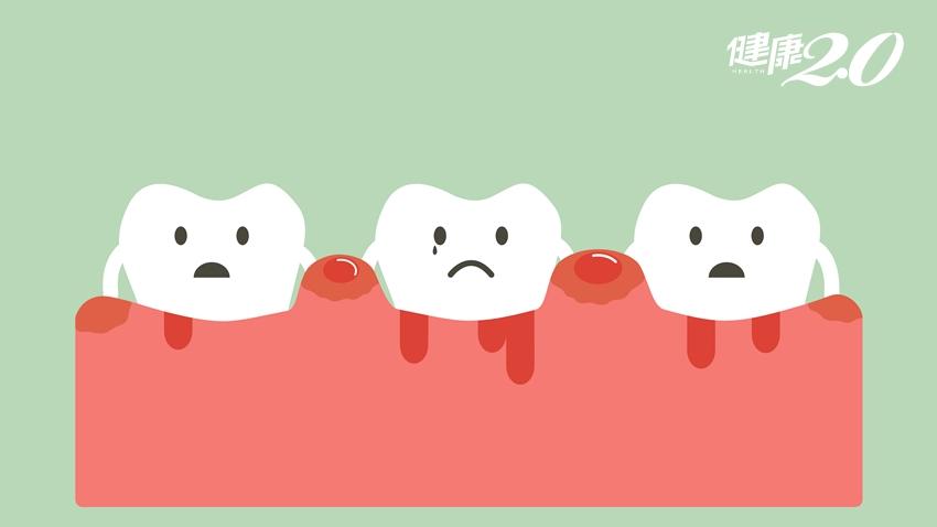 別以為刷牙流血沒關係,小心你變成口腔殘障!