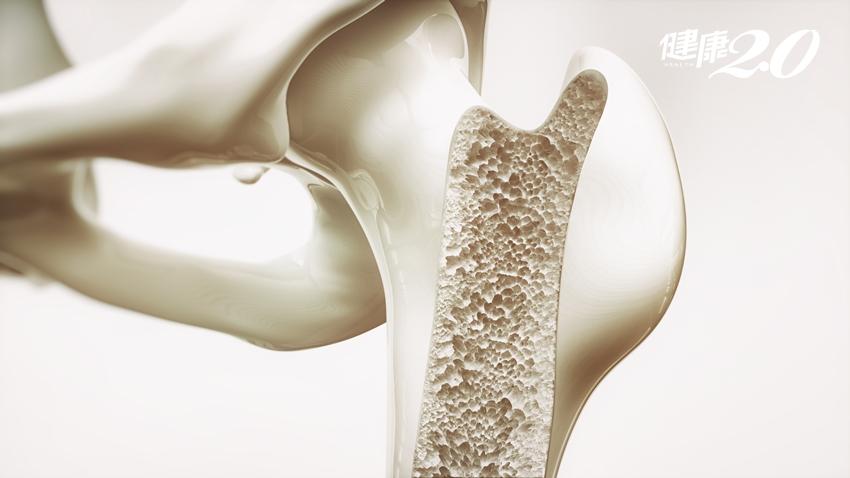 防骨鬆趁現在!每天做「這個」維持骨密度,簡單到不行!
