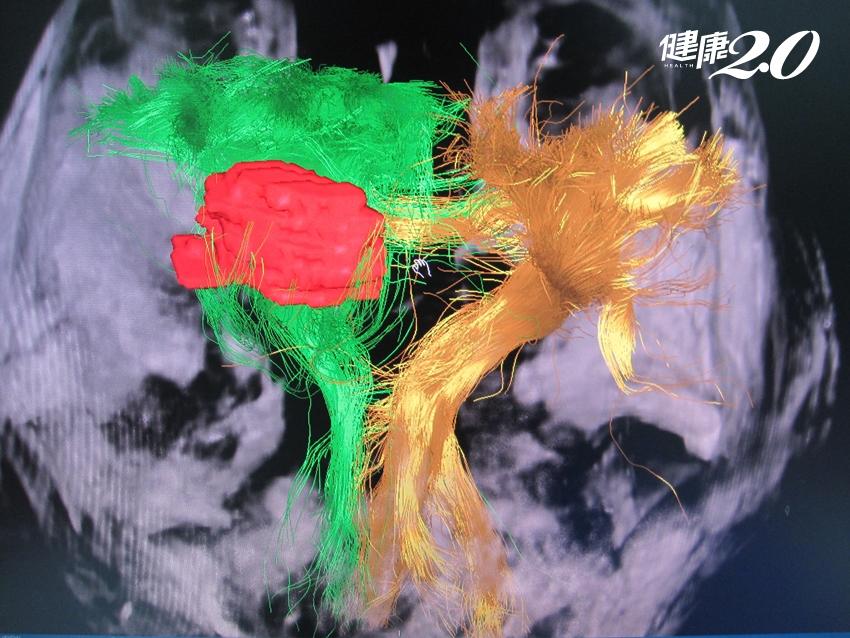 「免開腦」微創手術發展佳!8成腦部病症適用