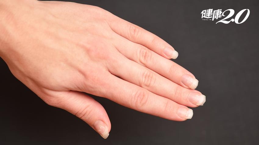 指甲暗藏玄機!一個小症狀竟能看出4種病