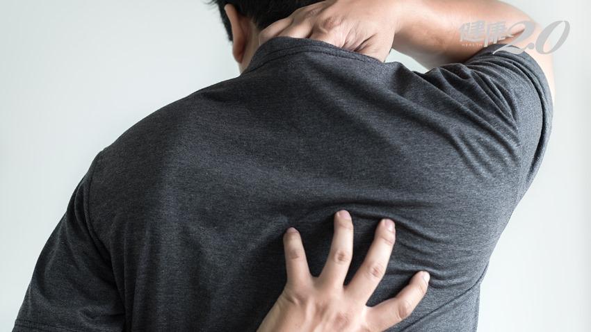 吃保健食品出現紅疹、搔癢是身體在排毒?專家告訴你真相