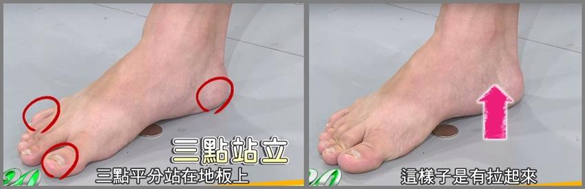 拇趾外翻自己治!復健師教你有效改善的神奇運動