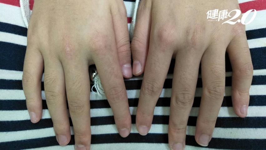 肌肉無力、手臉起紅疹,別誤當異位性皮膚炎!恐患罕見疾病[皮肌炎]