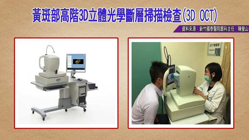 小心三高引來黃斑部病變!眼科醫:這個檢查最精確