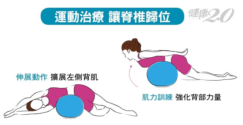 脊椎側彎了,2套運動治療 讓脊椎歸位