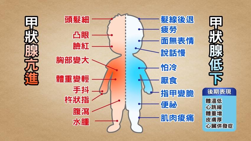 甲狀腺亢進不僅會腫脖、凸眼,9種症狀都和它有關!