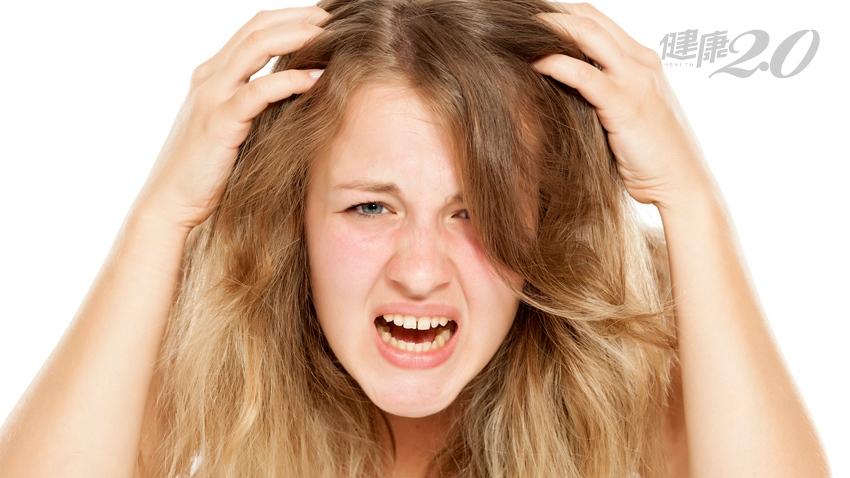 頭皮屑怎麼愈洗愈多?原來是用錯了洗髮精