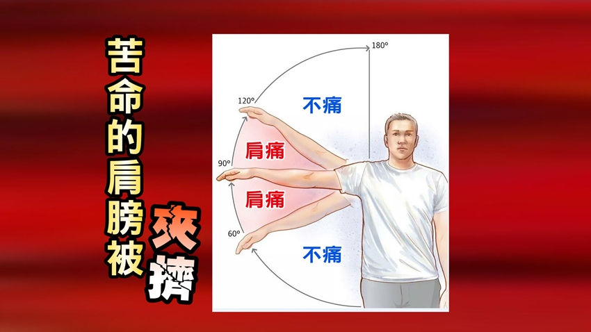 一舉手就痛?「一個姿勢」檢測五十肩還是夾擠症