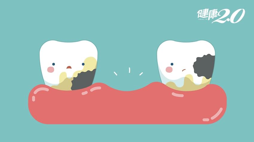 缺一顆牙沒關係?醫師警告:當心長皺紋、脖子痠痛、疲倦感上身