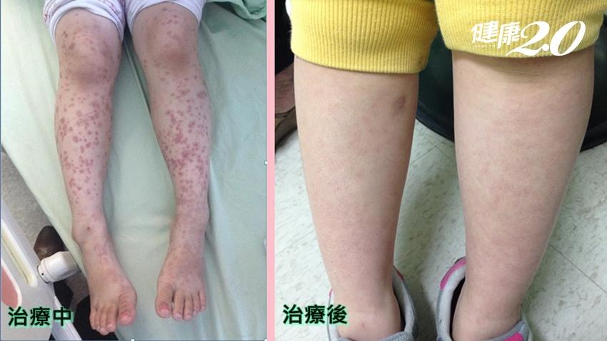 身上的紅疹怎變色了?當心是過敏性紫斑症發作