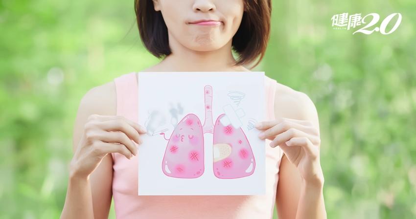 不菸不酒的母子竟得肺癌?健檢時加做這個可揪出早期病灶