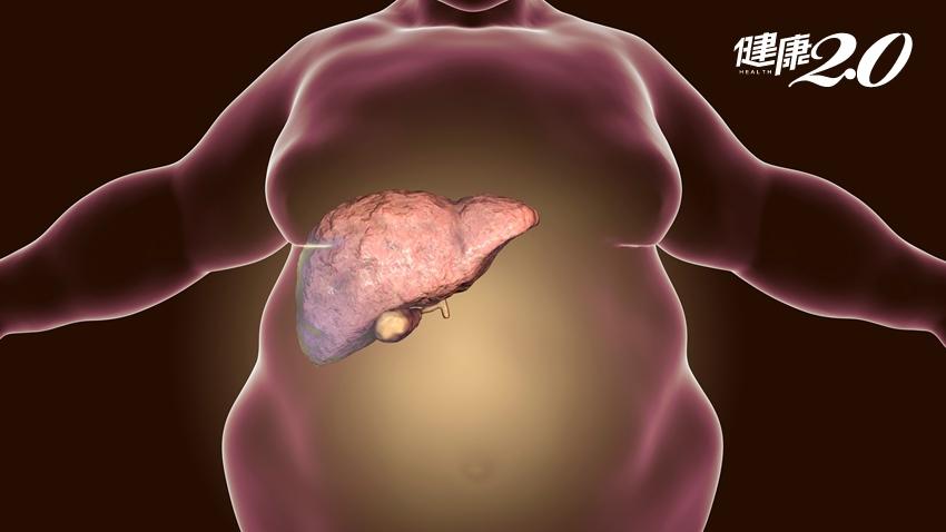 脂肪肝不是病?不積極控制小心糖尿病、肝病跟著來