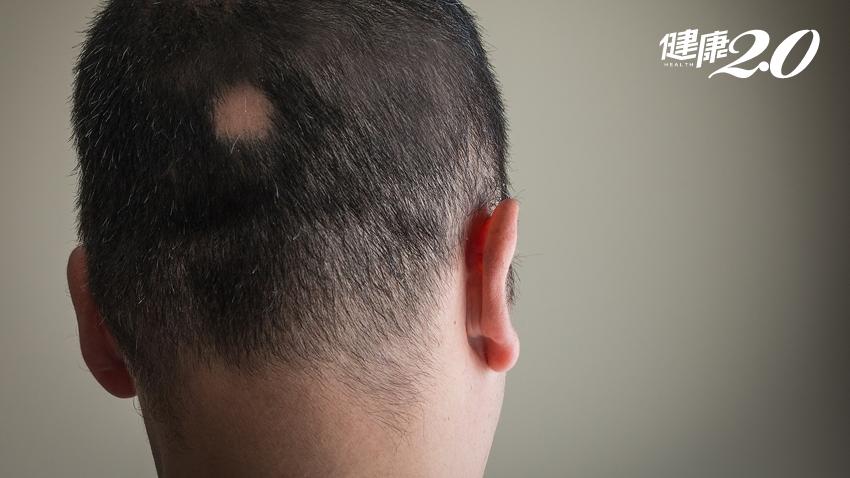 一覺醒來鬼剃頭?中醫告訴你 補肝腎生髮3關鍵