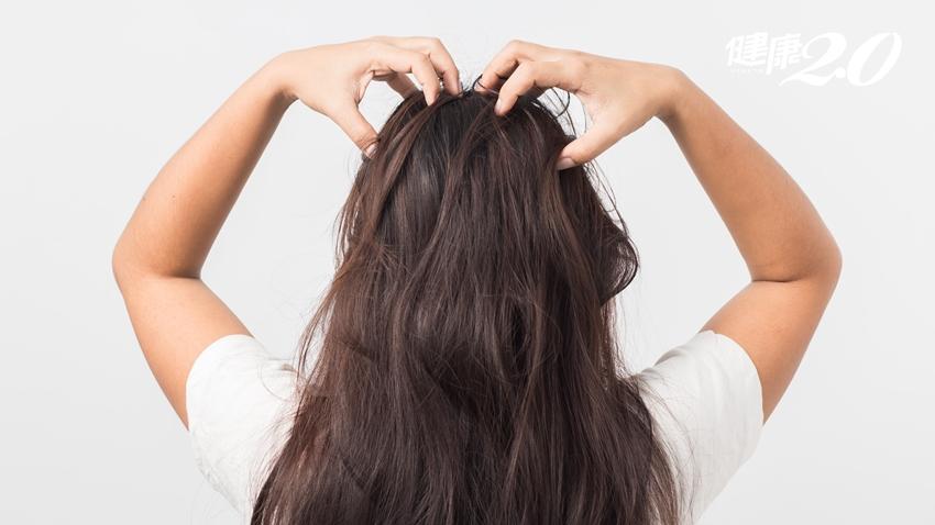 選洗髮精前,先搞懂你的頭皮屬性:關鍵在「頭皮出油速度」