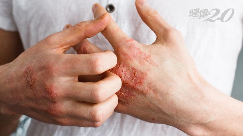 全身冒水泡又癢又痛 老年人小心「類天皰瘡」
