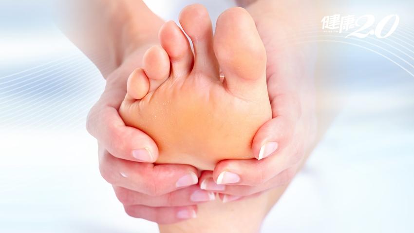走路像踩石頭…腳底厚繭變雞眼,請你這樣預防+自療