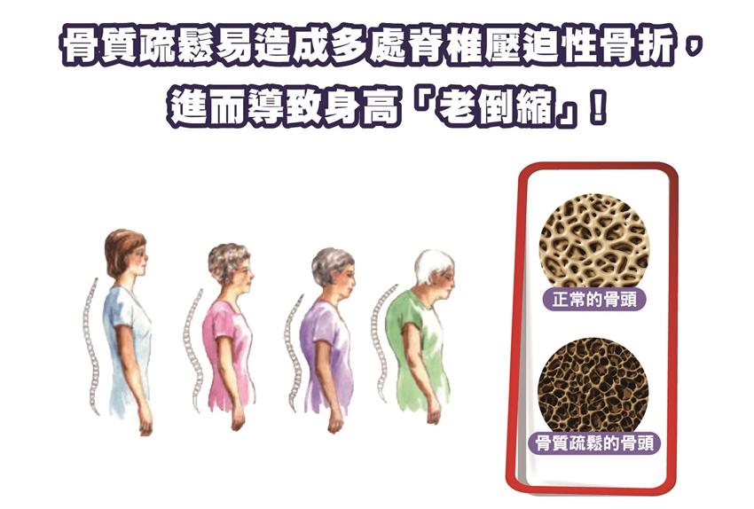 骨骼健康新觀念:補鈣+維持骨膠原