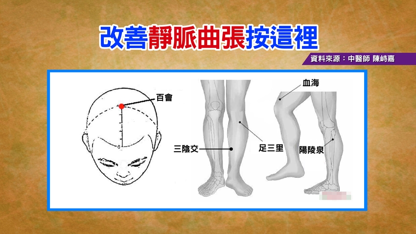 久坐腳麻、浮腫要注意!中醫教你「按這裡」改善靜脈曲張