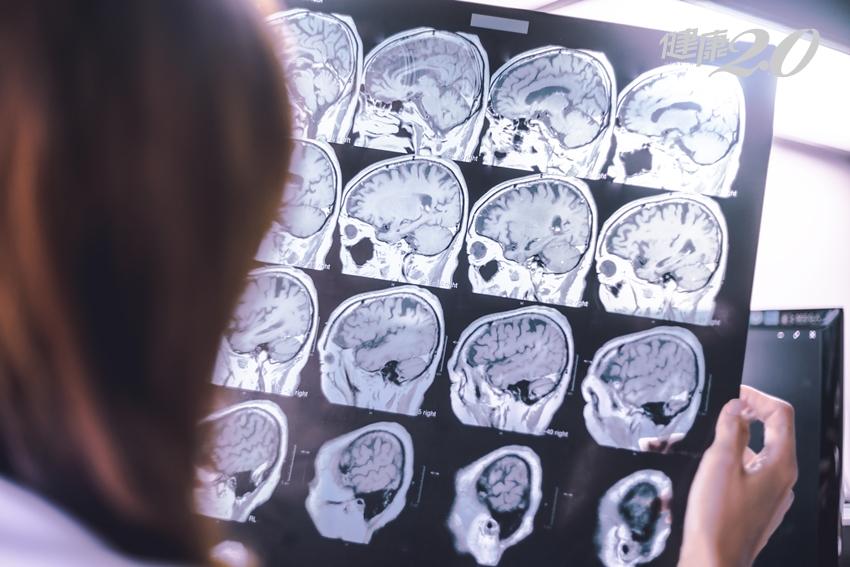 失智症無法治癒,可以不吃藥嗎?
