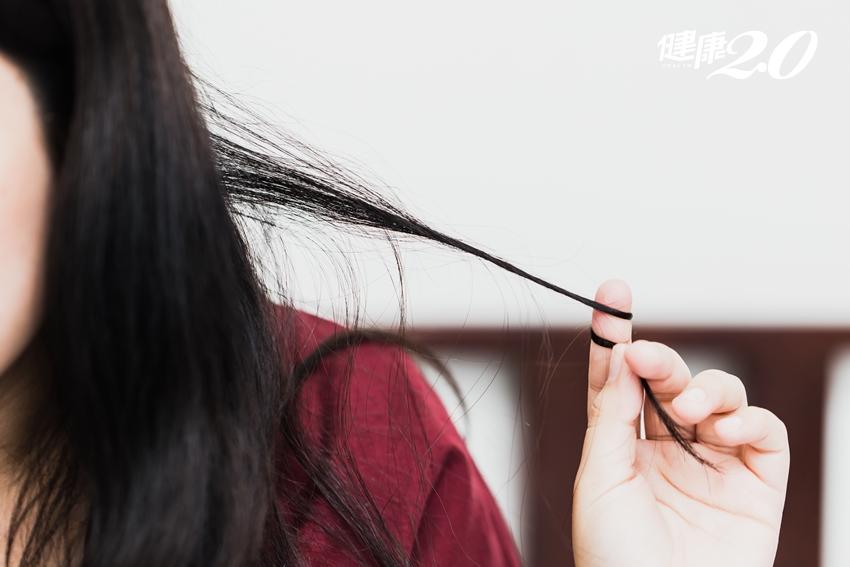頭皮緊繃、髮絲變細…這些情形可能是禿頭前兆!