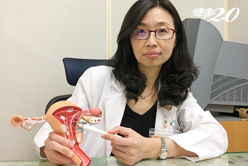 經痛差點毀了新娘夢 子宮內膜異位術後搭配新藥防復發