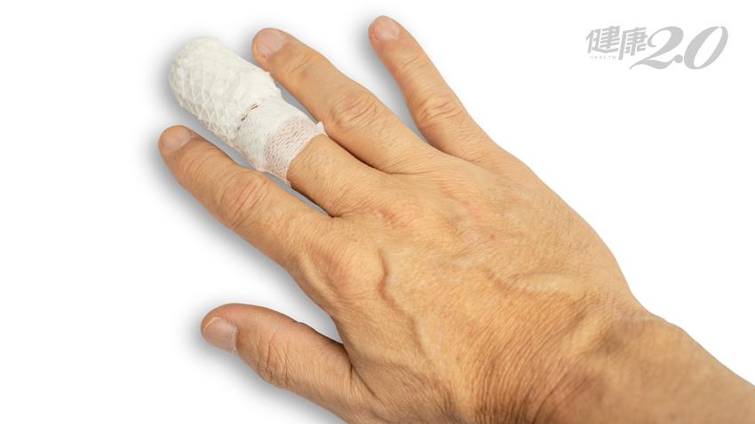 手指痛不見得都是「吃蘿蔔乾」 冰敷兩天無效就得看醫師