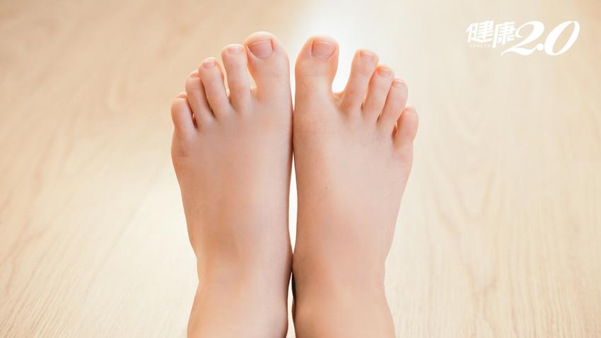 痛!腳趾甲嵌肉寸步難行 不用手術1招解除腳酷刑