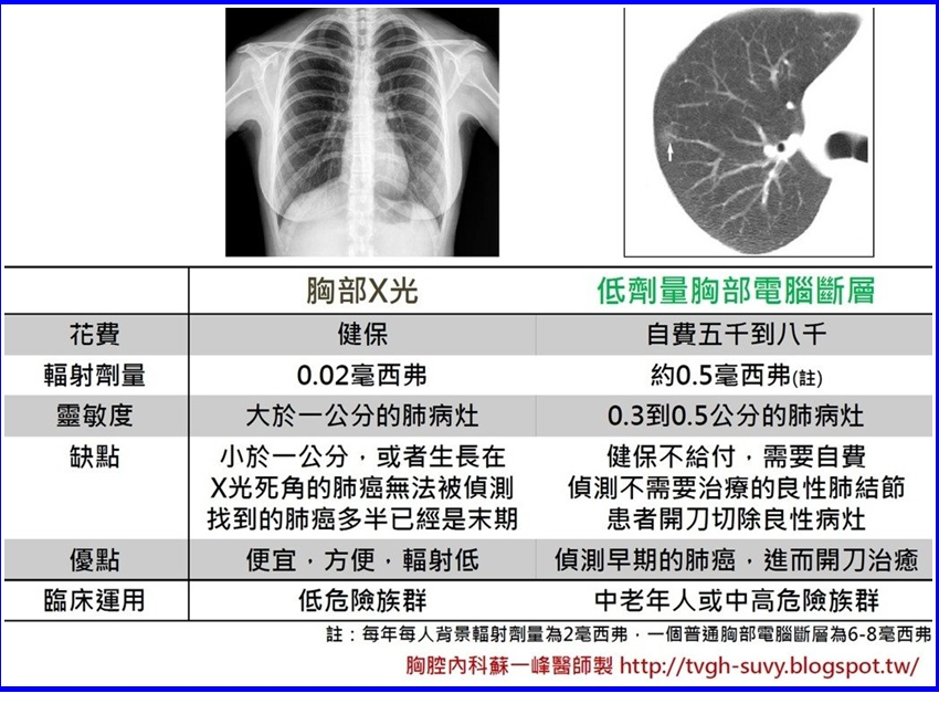 這項檢查比X光更厲害,可以從死角揪出早期肺癌