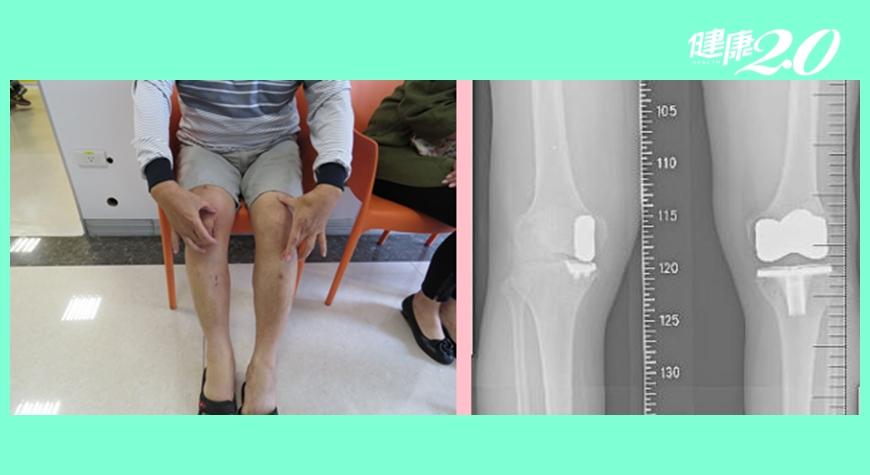 機器人手臂精準置換局部膝關節 傷口小復原快不必再開刀