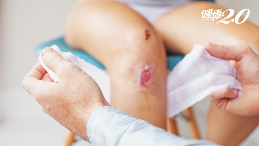 婦燒艾草治痠痛燙傷 5字訣正確處理不發炎