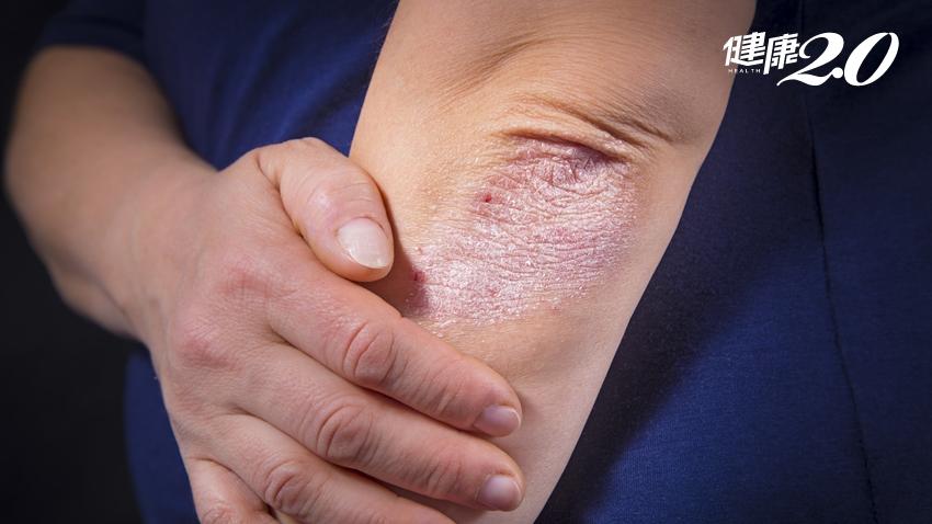 乾癬易復發,免疫失調別亂補!中醫教你用對方法抗「癬」