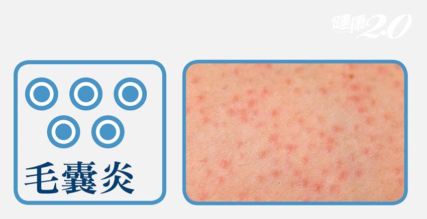 圖解!3種皮膚病是「流汗」害的,原因症狀療法一次告訴你
