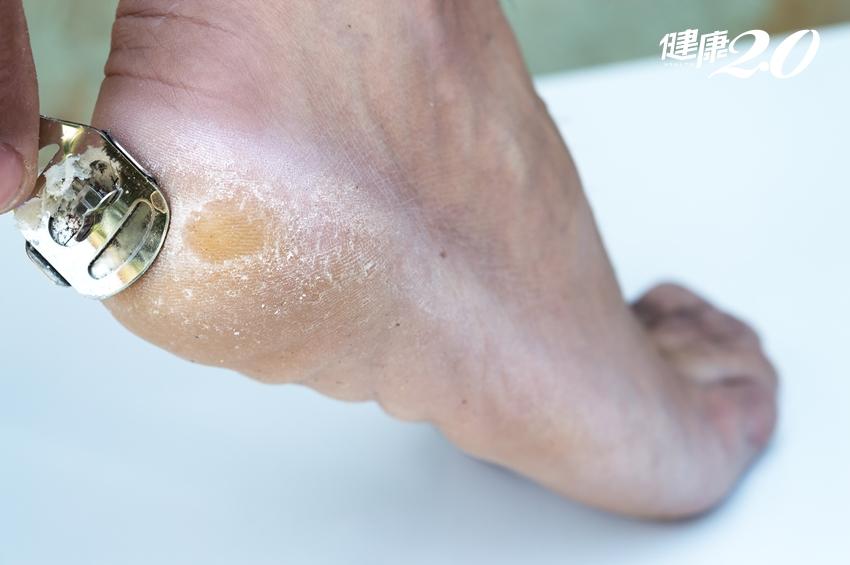 腳癢、腳臭、腳長繭…腳ㄚ子出現8個症狀,就要當心了!