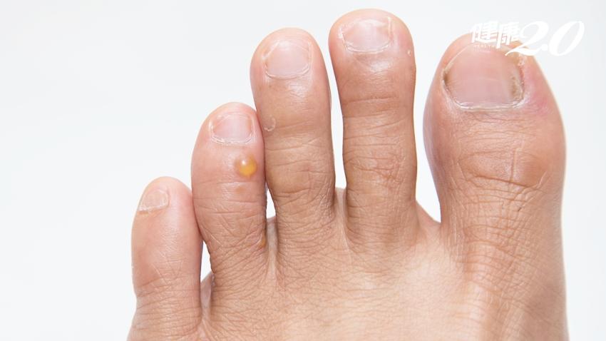 腳上長出會癢的小水泡?汗皰疹不會傳染,但千萬別抓!