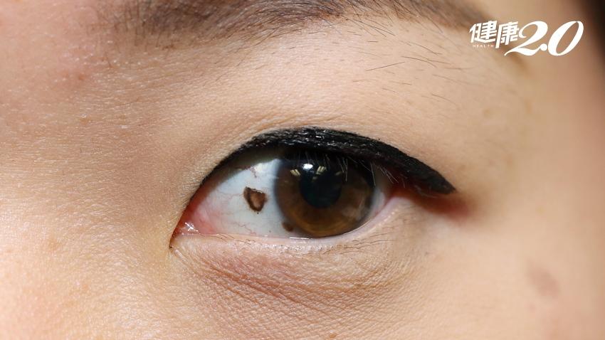 眼睛也會長惡性黑色素瘤?不可忽視的眼睛黑斑